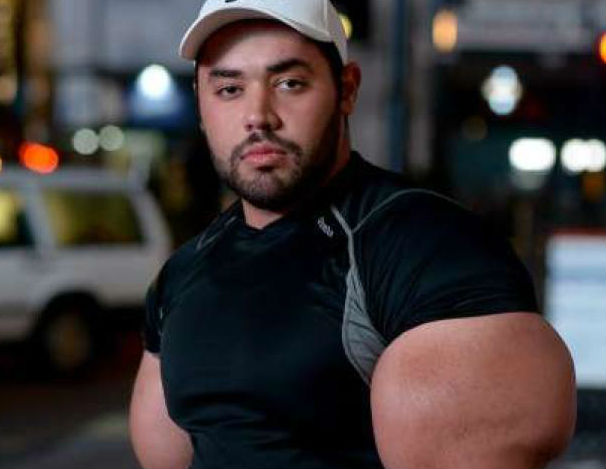 """Bodybuilder With """"Popeye Arms"""" Breaks Guinness Record For Biceps"""