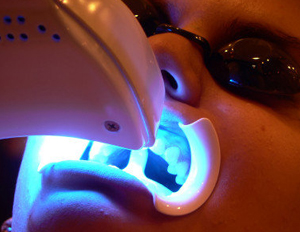 dental teeth whitening